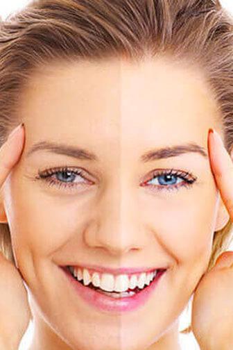 Consulenza skin care milano